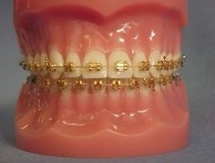 Stylish And Comfy Different Types Of Braces For Your Teeth Dental Braces, Teeth Braces, Different Types Of Braces, Braces Problems, Gold Braces, Cute Braces Colors, Braces Tips, Getting Braces, Tooth Gem