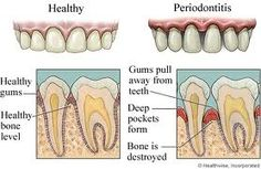Gums--Several research studies suggest that there is an association between periodontitis, an inflammation and infection of the ligaments and bones that support the teeth, and health conditions such as diabetes and heart disease.  The American Dental Association (ADA) recommends maintaining a healthy oral regimen (brushing and flossing) to maintain gum health.    Source:  http://www.crestprohealth.com/dental-hygiene-topics/gum-disease/healthy-gums.aspx