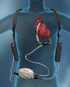 Thoratec Heartmate II Left Ventricular Assist Device (LVAD). Amazing technology to work with