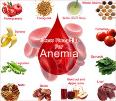 Severe Anemia symptoms, causes. Types of anemia treatment. Home remedies for sickle cell anemia. pomegranate to treat anemia naturally. Homemade medicines.
