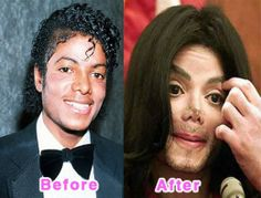 Michael Jackson on Hollywood Celebrity Plastic Surgery Disasters