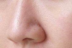 En el siguiente artículo aprenderás cómo cerrar los poros de manera natural para verte mucho más bonita.