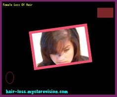 Female Loss Of Hair 142254 - Hair Loss Cure!