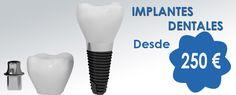 excelente alternativa para los que necesiten realizar implantes, profesionales con experiencia y un muy buen precio mas que no es fácil de conseguir... http://www.clinicacid.com/  #ortodoncia #cordoba