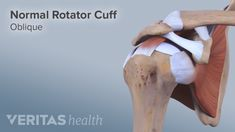 The rotator cuff is prone to injuries both acute and chronic. Learn the scope of injuries that affect these muscles.