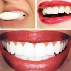 Dr. Oz Teeth Whitening Home Remedy: 1/4 cup of baking soda + lemon juice from half of a lemon. Apply with cotton ball or q-tip. Leave on for no longer than 1 minute, then brush teeth to remove.  da provare :)