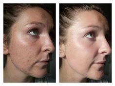 Amazing result using our Mud Mask and Polishing Peel at home! Are you having problems with acne/blemishes or is your skin feeling dull? These two products are absolutely the best! Polishing Peel Nuskin, Skin Peeling On Face, Organic Face Moisturizer, Acne Blemishes, Dull Skin, Anti Aging Skin Care, Bentonite Clay, Facebook, Beauty Products