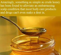 Our Enemy the FDA: Honey Heals Chronic Dandruff, Scaly, Itchy Scalp (Seborrheic Dermatitis)