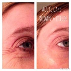 Love this! Fill a wrinkle while you sleep, no needle required! www.asavell.myrandf.com
