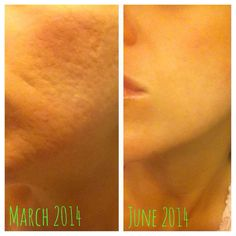 Redefine and an Amp MD roller // amazing Rodan + Fields results after 3 months (and years of cystic acne, scars, and failed laser treatments before R+F)! mturner6.myrandf.com