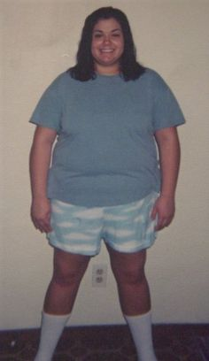 11 years post-gastric bypass and finally healthy!