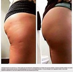 I love that It works defining gel can help make such a improvement in the look and feel of your skin!  http://bodycontouringwrapsonline.com/it-works-products/it-works-defining-gel