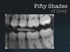 Fifty Shades of Dental Grey!