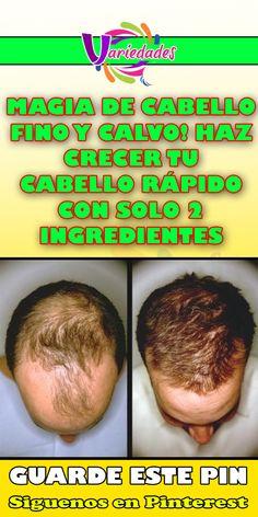 MAGIA DE CABELLO FINO Y CALVO! HAZ CRECER TU CABELLO RÁPIDO CON SOLO 2 INGREDIENTES #cabello #calvo #crecer Living A Healthy Life, Tips Belleza, Grow Hair, Shakira, Good To Know, The Cure, Short Hair Styles, Encouragement, Hair Cuts