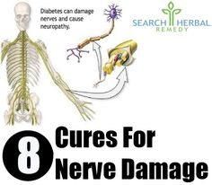 Natural cure for nerve damage: Camphor oil has anti-inflammatory properties and can be rubbed on the affected area to relieve the swelling & nerve pain.  Applying a mixture of Cinnamon powder & Honey paste can provide complete relief