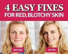4 Easy Hacks To Get Rid Of Red, Blotchy Skin. If you have sensitive skin, you know that it can get super flushed at the drop of the hat. Luckily, we found a solution, just in time for the cooler weather. Go to redbookmag.com to find out how to get rid of red blotchy skin once and for all.