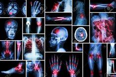 Ogni dolore fisico ha uno specifico significato emotivo. Ecco spiegati i 22 dolori più diffusi