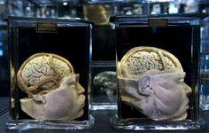 Hallan el mecanismo que explica las conexiones neuronales en el embrión