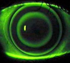 Night Vision Contact Lenses