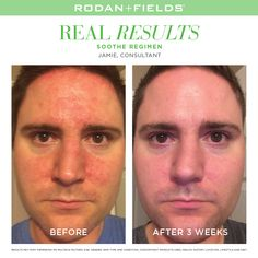 """Do you know about our SOOTHE Regimen for sensitive skin? Read what Jamie, an R F Consultant, had to say about his results after 3 weeks on SOOTHE. """"After years of suffering from eczema, on and off, I was introduced to Rodan & Fields. After only 3 weeks on the product, my current bout of eczema has cleared up and is getting better daily. I went from being embarrassed to leave my house with my eczema to now being excited to leave and have people comment on my improved skin."""" -RF Consultant…"""