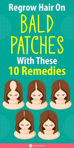 Regrow Hair On Bald Patches With These 10 Remedies