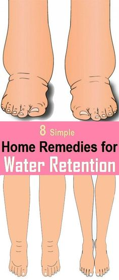 8 Best Home Remedies for Water Retention