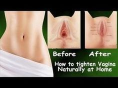 Tighten loose vagina naturally in 6-8 weeks .Home remedy that really works !!! - YouTube