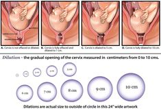 What the Numbers Mean When You Get a Cervical Check. Physical Changes In Fetus First Trimester . First Trimester Symptoms Twins Cervical Dilation Chart, Trimester Chart, First Trimester, Pregnancy Chart, Pregnancy Tips, Early Pregnancy, Pregnancy Stages, Maternity Style, Natural Childbirth