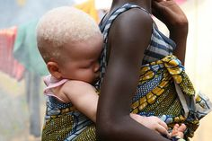 Albino African child on the back of her mother