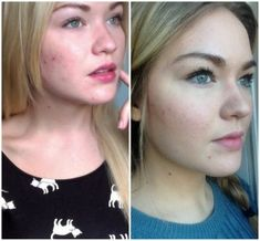Acne And Oily Skin Get Rid Of Your Acne For Good! Acne is a nightmare cosmetic problem for sure. Many acne patients somet. Beauty Care, Beauty Skin, Beauty Hacks, Face Beauty, Natural Beauty Tips, Natural Skin Care, Home Remedies For Hair, Acne Remedies, Skin Tips