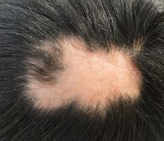 A alopécia areata é um tipo de queda de cabelo que pode ocorrer em qualquer idade, levando a 'falhas' ou 'peladas' no couro cabeludo, mas tem tratamento! Converse com seu dermatologista #alopecia #alopéciaareata #quedadecabelo #peladas #perdendocabelo #dermatologiaesaude #dermatologista #especializadoemdermatologia