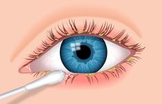 A cotton-tipped swab is used to clean an eye affected by blepharitis.