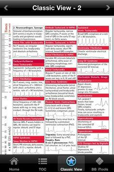 EKG Cheat Sheet