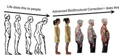 The title says it all Posture CORRECTION on a permanent basis.  Dr. Jutkowitz