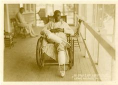 An injured soldier of World War I at Walter Reed General Hospital wearing temporary pilons, which precede permanent artificial limbs.  National Museum of Health and Medicine