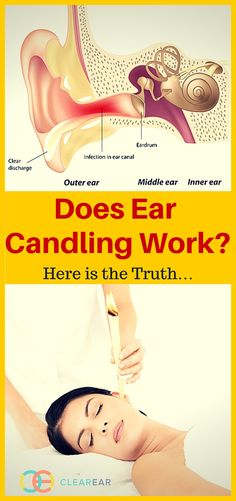 Ear candling is a practice you've no doubt heard of (from friends and family, but never from your doctor), and one you've considered trying. Slow your roll! Before you give it a try, there is a lot you need to know about ear candling at home.