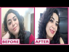 Tips And Tricks To Bring Out Your Natural Beauty - Skin Deep Beauty Tips Personal Beauty Routine, Beauty Routines, Beauty Hacks Skincare, Beauty Tips, How To Do Facial, Clear Skin Tips, Ingrown Hair, Fair Skin, Oily Skin