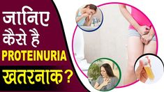 First, let us clear you that proteinuria isn't a disease in itself, but it is a primary sign of kidney damage. As we all know, in kidney diseases, several ur. Causes Of Kidney Disease
