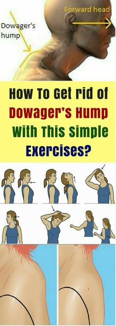 To Get rid of Dowager's Hump With This Simple Exercises? How To Get rid of Dowager's Hump With This Simple Exercises? How To Get rid of Dowager's Hump With This Simple Exercises? Fitness Workouts, Easy Workouts, Fitness Diet, Yoga Fitness, Health Fitness, Enjoy Fitness, Fitness Routines, Fat Workout, Mens Fitness