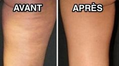 Reduce cellulite in just 4 treatments. For more information about cellulite treatment Birmingham UK. Causes Of Cellulite, Cellulite Remedies, Cellulite Exercises, Cellulite Workout, Reduce Cellulite, Fitness Tips, Health Fitness, Health Diet, Peau D'orange