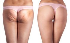 how to get rid of cellulite fast and naturally!