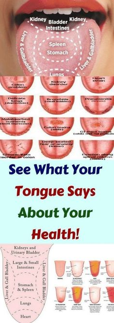 Find out if you have a healthy tongue! This is what the color of your tongue says about your health Lifehacks, Healthy Tips, Healthy Recipes, Healthy Drinks, Healthy Herbs, Healthy Detox, Healthy Women, Stay Healthy, Healthy Habits