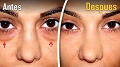 Las bolsas bajo los ojos son uno de los problemas estéticos más comunes. Te compartimos 5 buenos remedios para disminuirlas en casa.