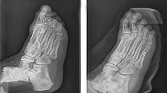 The best foot doctor in South Florida before and after images including bunion surgery. http://www.premierpodiatrygroup.com/before-after/