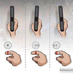 Trigger finger correction.