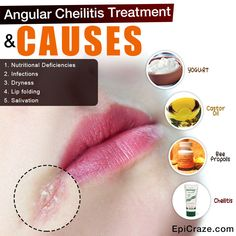 What is Angular Cheilitis? Angular cheilitis is also known as angular perleche, angular stomatitis, and angular cheilosis. All of these names are in refere