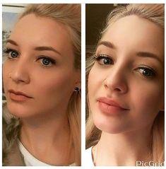 Subtle Lip Filler filler before and after Cheek Fillers, Botox Fillers, Dermal Fillers, Botox Brow Lift, Botox Before And After, Lip Fillers Before After, Botox Lips, Lip Tips, Lip Augmentation