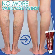 Varicose Vein Removal, Varicose Veins Treatment, Spots On Legs, Dark Spots On Skin, Lower Leg Muscles, Younger Skin, Beauty Tips, Beauty Hacks, Health Ads