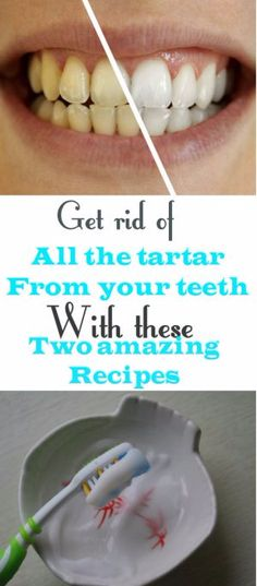 Get Rid Of All The Tartar From Your Teeth With These Two Amazing Recipes