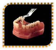 Saratoga California, Santa Clara, Dental Implants, Wordpress, Boards, Stuff To Buy, Planks